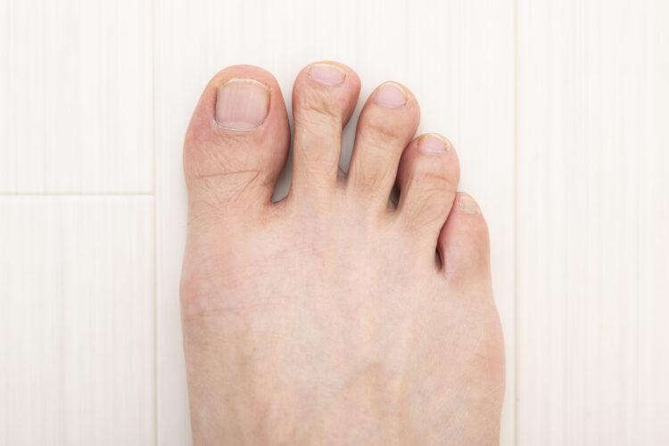 交通事故で足の指が曲がらない!後遺障害等級と慰謝料について解説